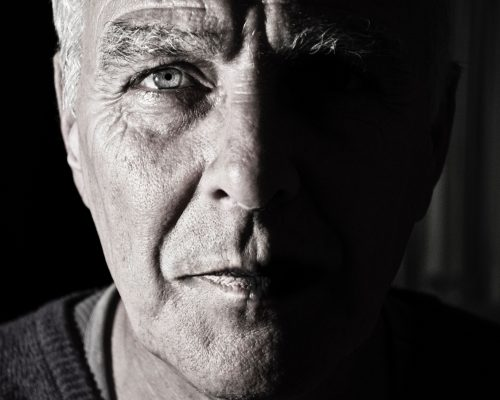 Kenali penyakit katarak, RS Awal Bros Bekasi Barat