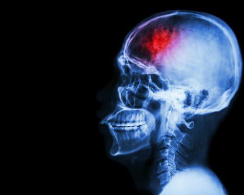 Critical Illness: Stroke, RS Awal Bros Evasari