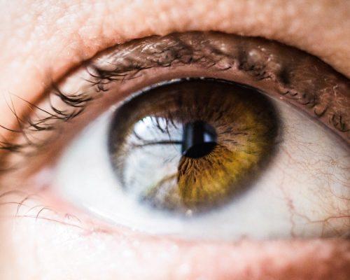 gangguan mata, rumah sakit awal bros evasari jakarta