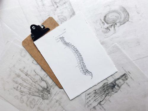 penyakit spondilosis, rumah sakit awal bros makassar, dokter spesialis tulang, dokter spesialis orthopaedi dan trauma