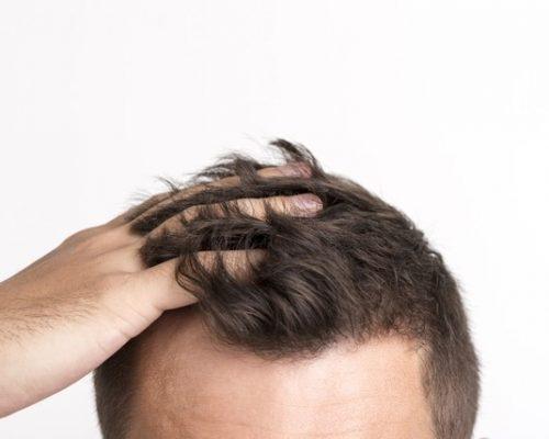 rambut rontok karena ketombe, dokter spesialis kulit dan kelamin, rumah sakit awal bros batam, rs awal bros