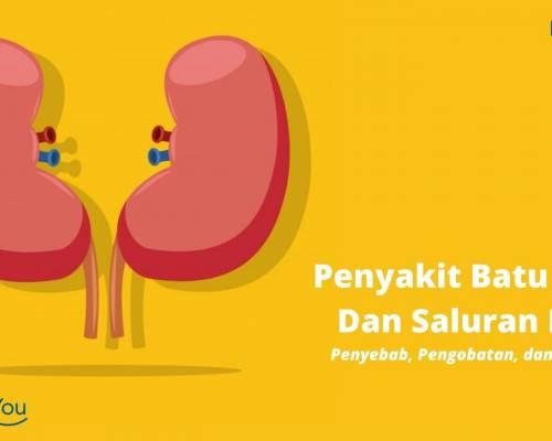 Penyakit Batu Ginjal Dan Saluran Kemih _ Penyebab, Pengobatan, dan Pencegahan, Tindakan ESWL