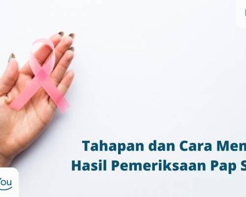 Pemeriksaan Pap Smear, Tahapan dan Cara Membaca Hasilnya