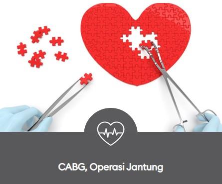 CABG Operasi Jantung 445x370
