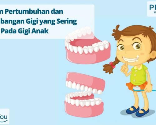 Kelainan Tumbuh Gigi pada Anak