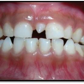 gigi berlebih