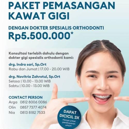 Paket Pemasangan Kawat Gigi