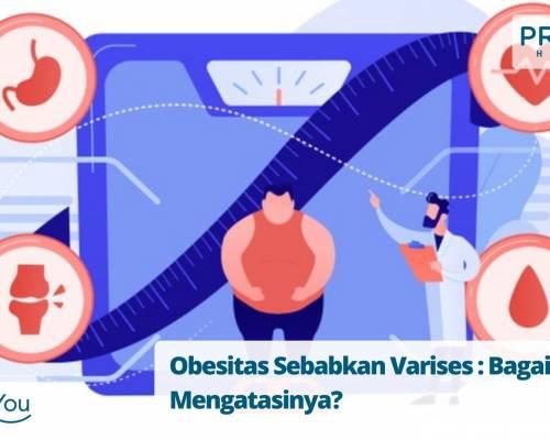 Obesitas Sebabkan Varises Bagaimana Mengatasinya