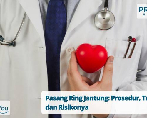 Pasang Ring Jantung Prosedur, Tujuan dan Risikonya