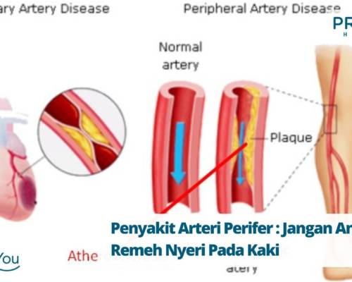 Penyakit Arteri Perifer Jangan Anggap Remeh Nyeri Pada Kaki