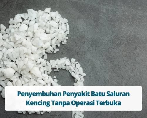 Penyembuhan Penyakit Batu Saluran Kencing Tanpa Operasi Terbuka